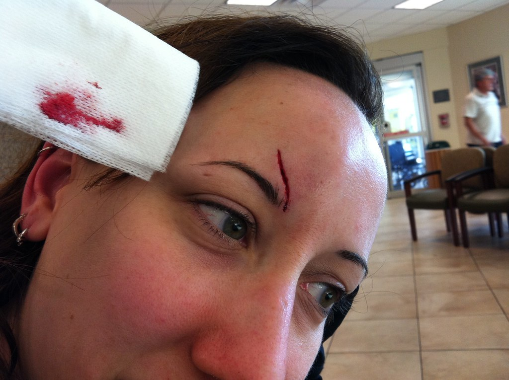 Slip and Fall Injury cut above right eye